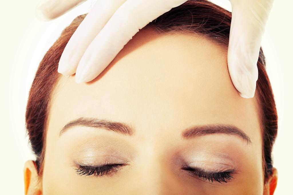 Botox, botoxbehandling i göteborg hos citylaser