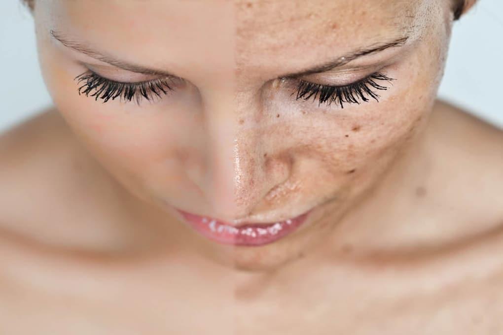 hudföryngring hos citylaser - genom microneedling med dermapen
