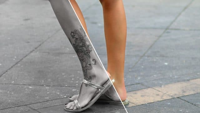 Tatueringsborttagning
