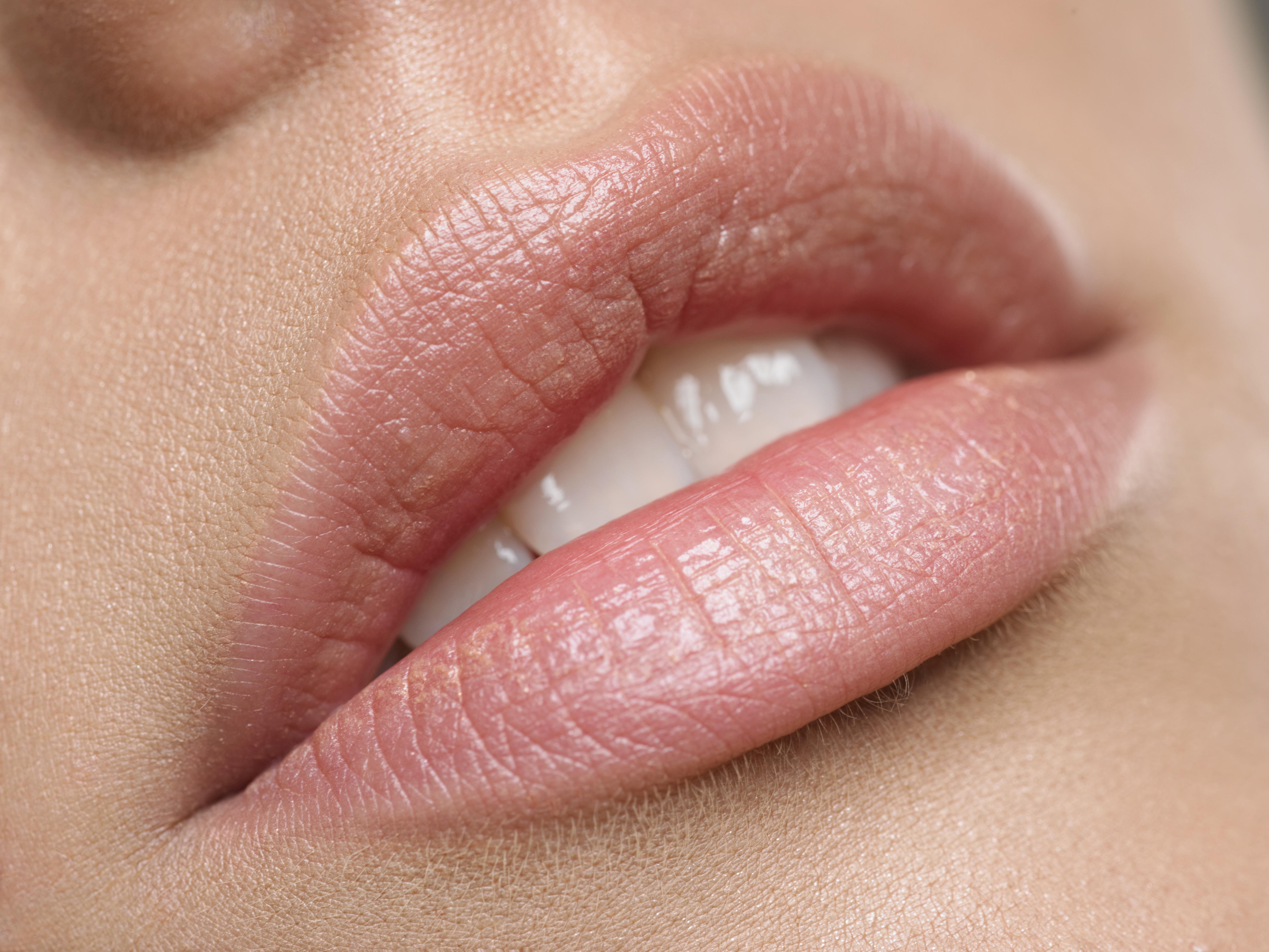 Läppförstoring- den mest populära skönhetsbehandlingen